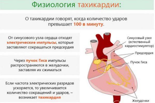 Тахикардия симптомы и лечение беременных 44