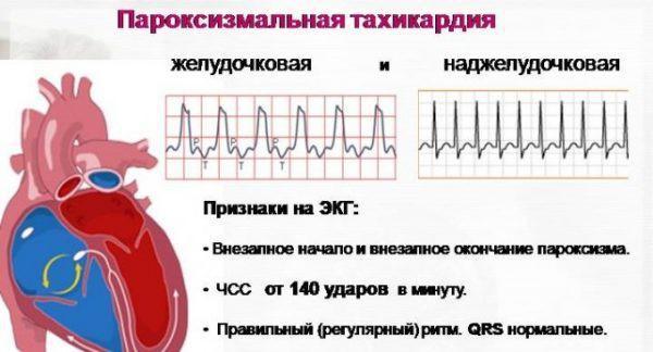 Тахикардия симптомы и лечение беременных 54