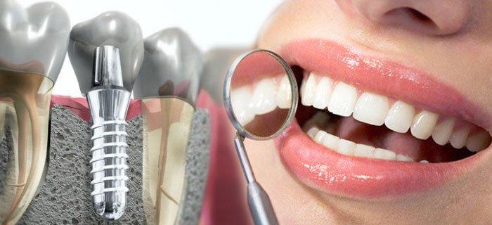 Имплантация зубов: современный подход