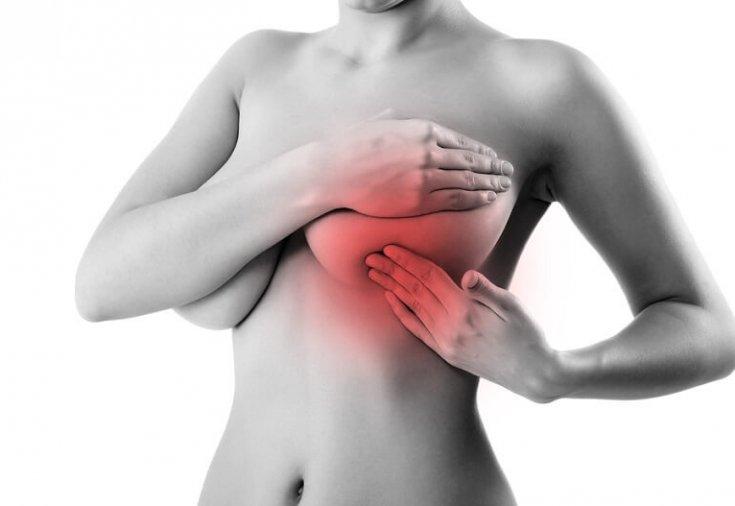 Как лечить мастопатию у женщин