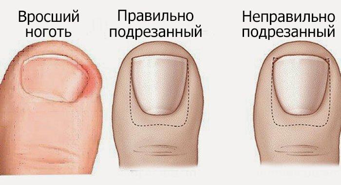 Вросший ноготь: профилактика и народные средства