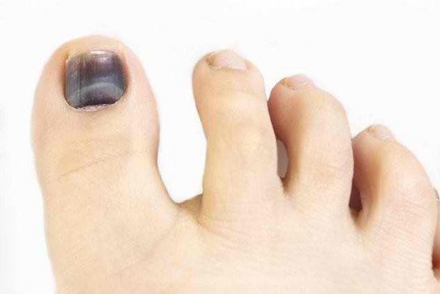 Темный ноготь: причины и советы по лечению