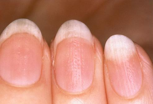 О чем говорят волнистые и бугристые ногти?