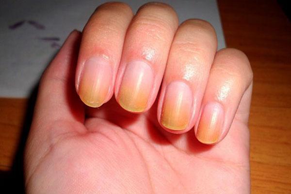 Желтые ногти на руках и ногах: причины и лечение