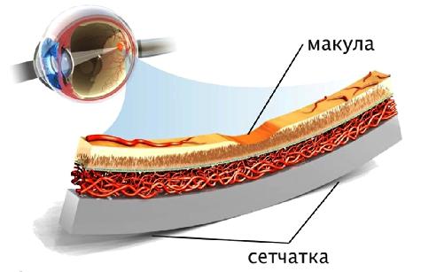 Успешное лечение влажной макулодистрофии сетчатки глаза с восстановлением зрения, Клиника УникаМед — уникальные технологии лечения