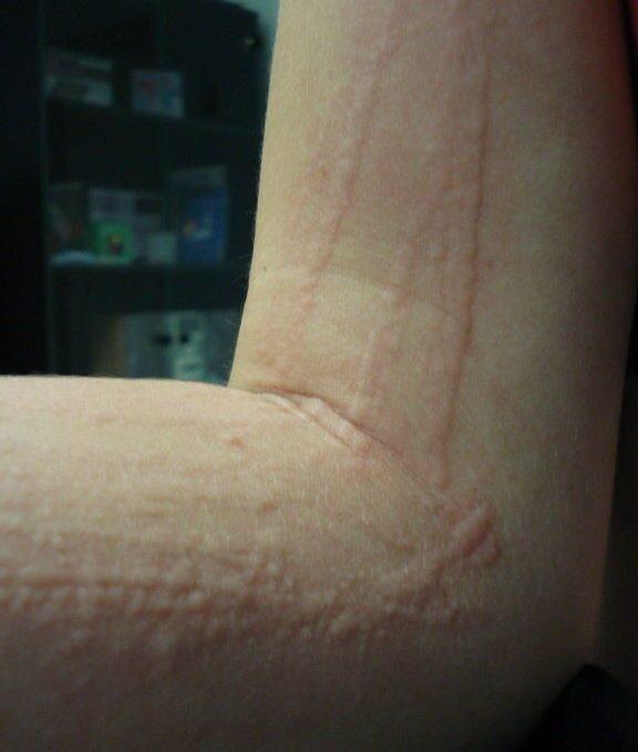 Крапивница фото симптомы и лечение у взрослых