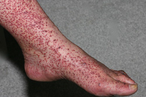 Геморрагический васкулит на ногах – фото, симптомы, лечение народными средствами, причины