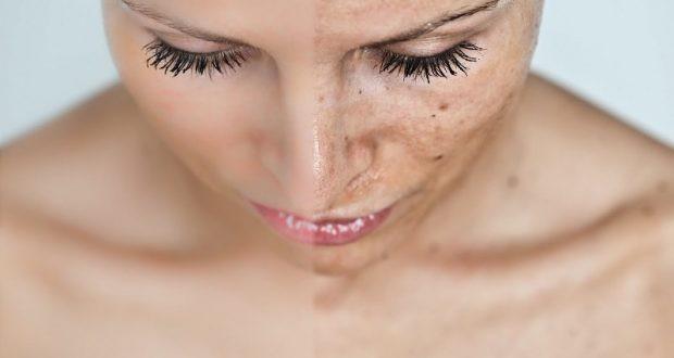 Как избавиться от пигментации лица и пигментных пятен на теле быстро?