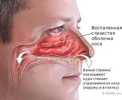 Лечение насморка и простуды народными средствами