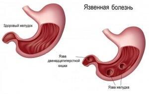 Причины возникновения язвы двенадцатиперствной кишки и как раз и навсегда забыть о недуге, как вылечить язву желудка народными средствами навсегда