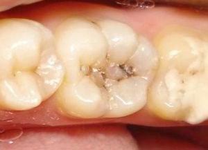 Проверенные советы народных лекарей при лечении кариеса зубов — Будьте Здоровы
