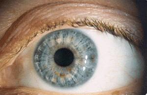 Кератоконус — симптомы, классификация, лечение