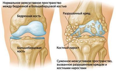Применение народной медицины в лечении гонартроза у взрослых и детей, гонартроз 1 степени коленного сустава народные средства лечения