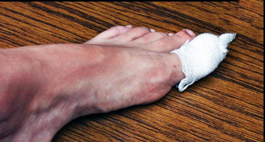 Народные средства от грибка ногтей: лечение, отзывы