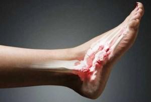 Возвращаемся в строй: лечение и первая помощь при вывихе ноги — Будьте Здоровы