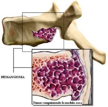 Лечение гемангиомы позвоночника народными средствами — Лечение народными средствами — информационный портал