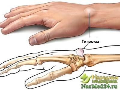 Гигрома запястья: появление и причины заболевания, народные средства в лечении