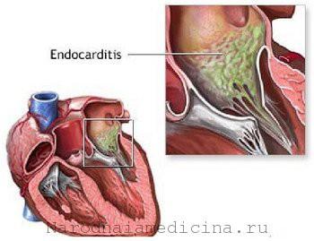 Эндокардит симптомы, лечение, профилактика, признаки, причины, инфекционный эндокардит — болезни и состояния