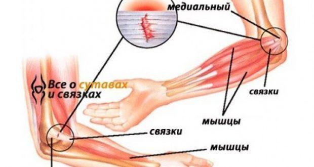Эпикондилит локтевого сустава: лечение и разновидности заболевания