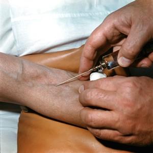Флебит (воспаление) вены на руке: лечение, симптомы, фото нарушения