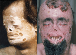 Порфирия: симптомы, причины и лечение болезни — Секреты Здоровья