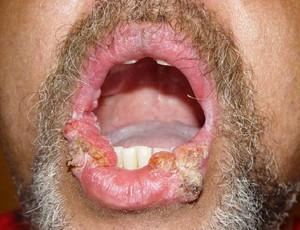 Остроконечные кондиломы: симптомы и лечение кондиломатоза народными средствами, фото