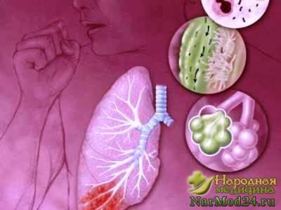 Гнойный абсцесс: лечение, причины, осложнения