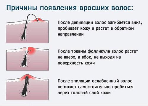 Как избавиться от вросших волос после эпиляции