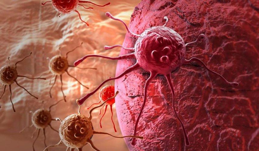 Онколог рассказал, какие эмоции могут стать причиной развития рака