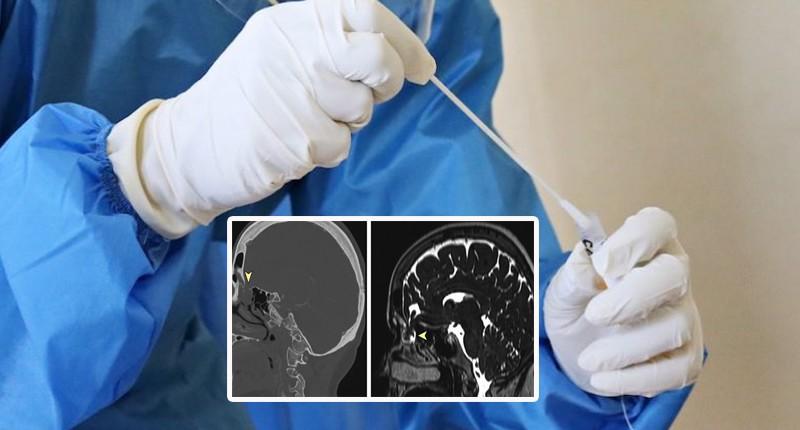 У женщины после мазка на COVID-19 из носа начала вытекать мозговая жидкость