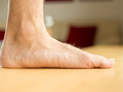 Ортопед-травматолог рассказал, к чему может привести плоскостопие