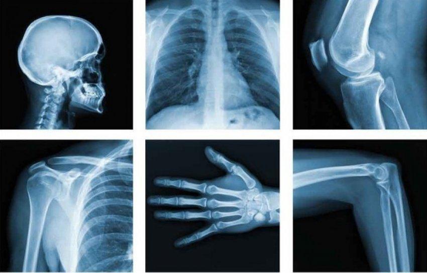 Что нам известно о рентгеновском излучении?
