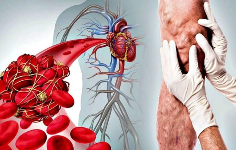 Какие симптомы могут подсказать наличие мелких тромбов в организме человека