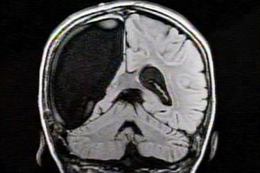 Что будет, если удалить половину мозга?